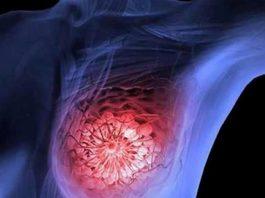 matar tumores de cancro da mama