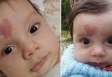 bebé que encantou o mundo com a sua marca de nascença